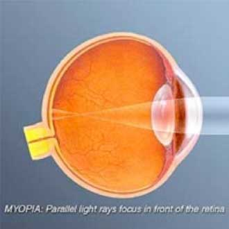 Nearsightedness,-or-myopia