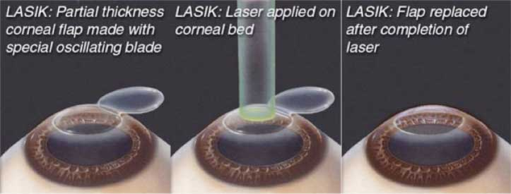 What-is-LASIK-What-is-LASIK-